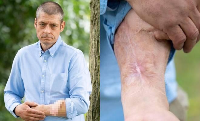 4 yıldır kolundaki penisle yaşayan adamın dramı